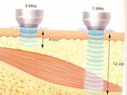 Micromasaje Ultrasónico
