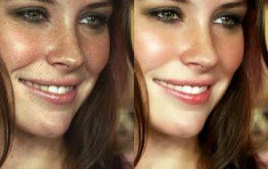 Rejuvenecimiento Facial con Láser CO2 Fraccional